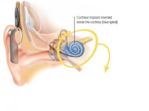 en_product_cochlearimplant_demonstrationofcochlearimplantinsertedinsidethecochlea_bluespiral_517x386_15.2kb